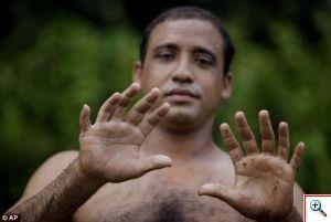 Эрнандес Гарридо - человек с 24 пальцами